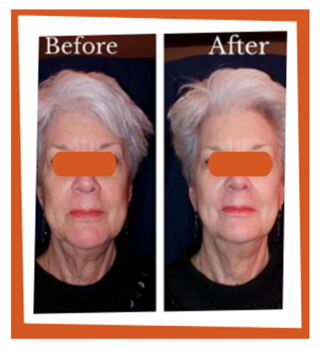 Facial cosmetic acupuncture in Bothell