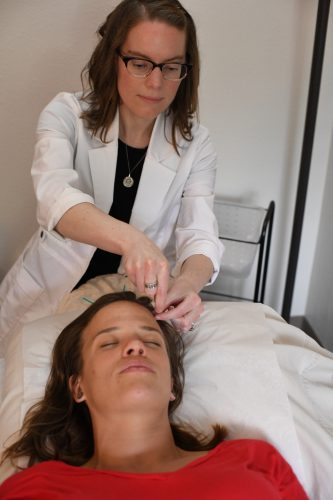 Facial cosmetic acupuncture benefits