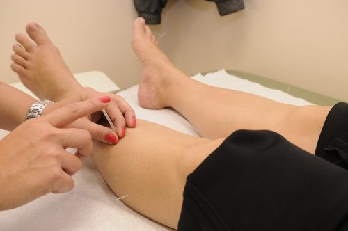 Acupuncture works for pain relief