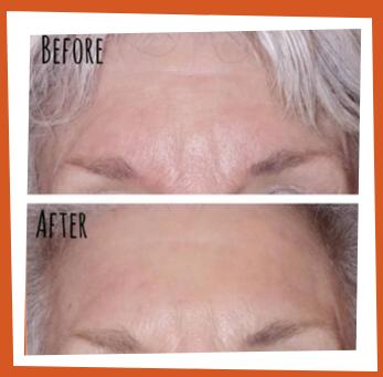 Facial rejuvenation in Bothell