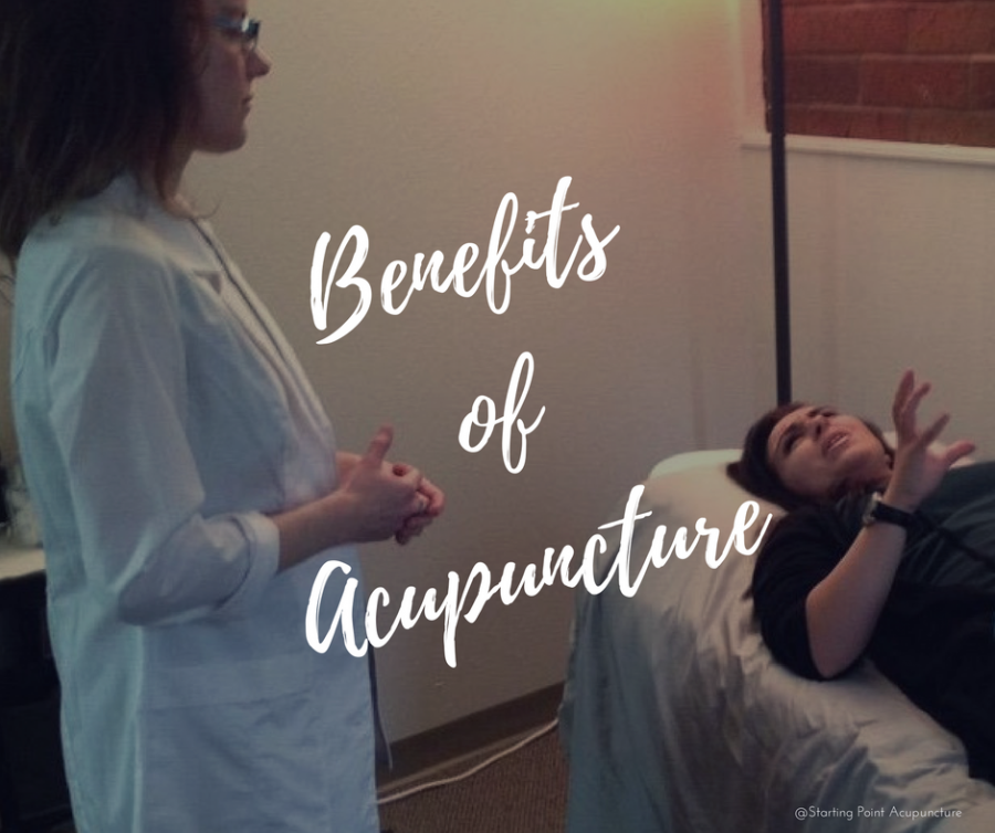 Positive effects of acupuncture