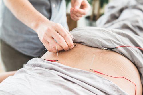 Electroacupuncture for autoimmune disease
