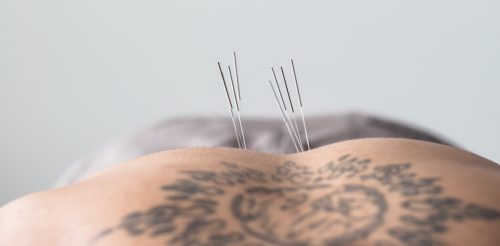 Acupuncture for low back pain in Bothell