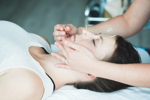 Facial cosmetic acupuncture the no-tox Botox