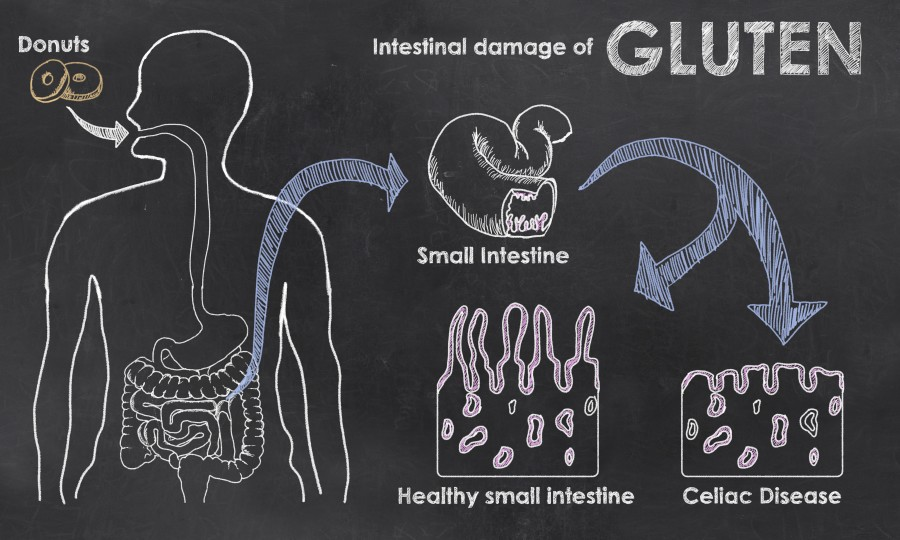 Understanding Celiac Disease | Starting Point Acupuncture ...
