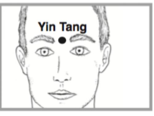 Yintang for reducing stress