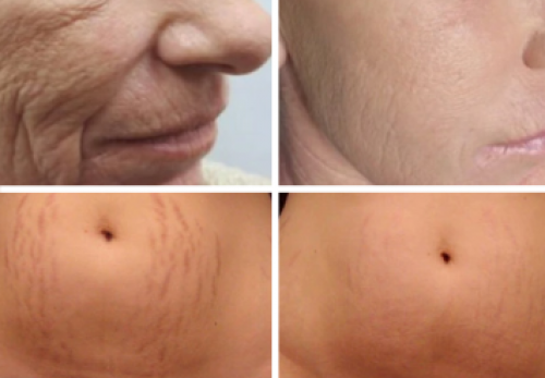 Microneedling with AcuMicro