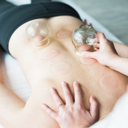 Acupuncture treatments and cupping