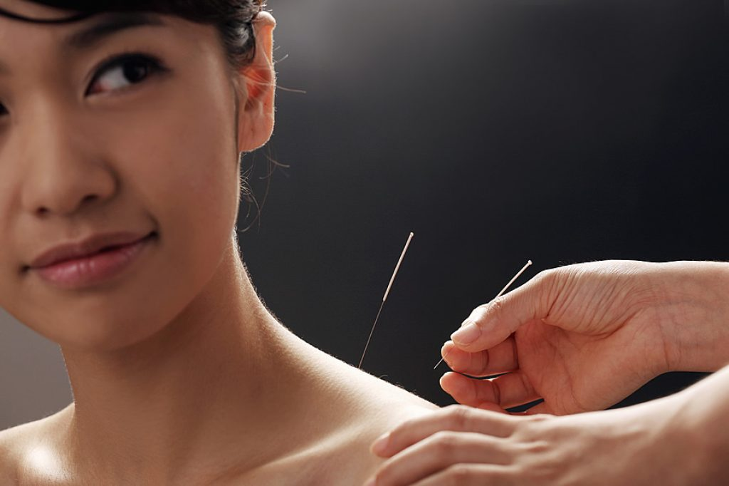 acupuncture helps irregular menstruation