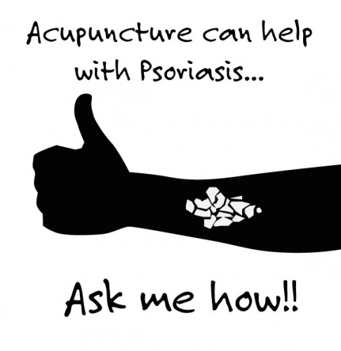 acupuncture as treatment of psoriasis
